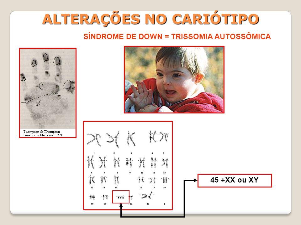 ALTERAÇÕES NO CARIÓTIPO SÍNDROME DE DOWN = TRISSOMIA AUTOSSÔMICA