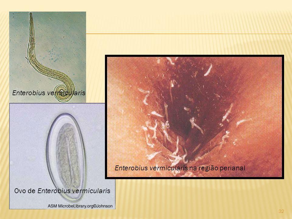 Enterobius vermicularis