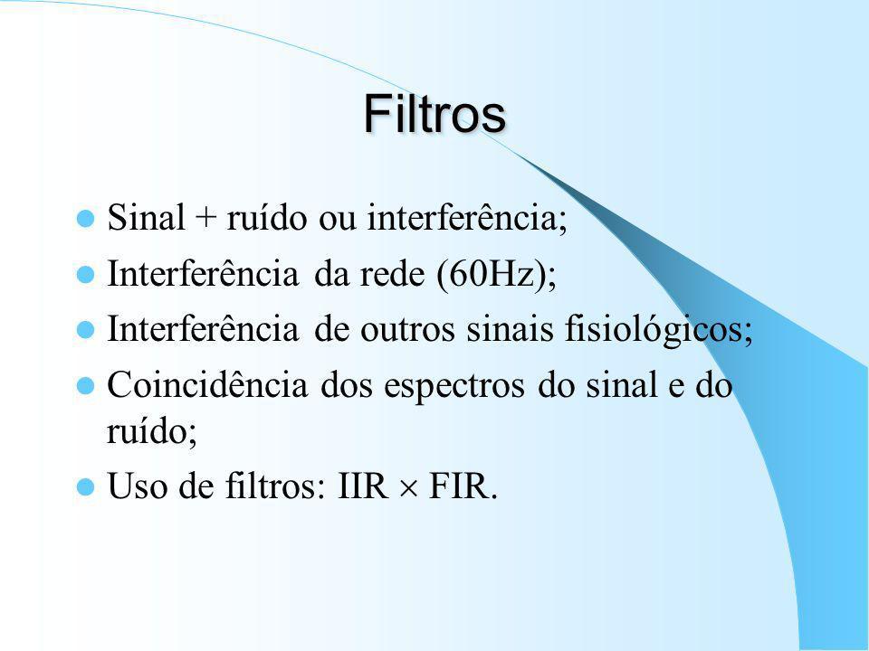 Filtros Sinal + ruído ou interferência; Interferência da rede (60Hz);