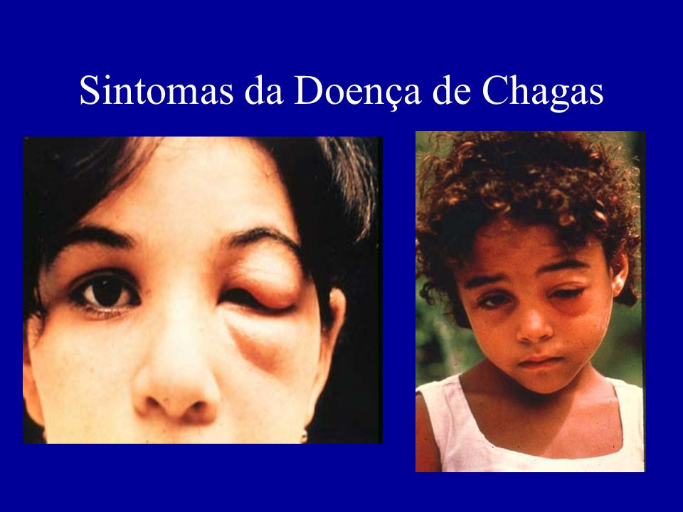 Sintomas da Doença de Chagas
