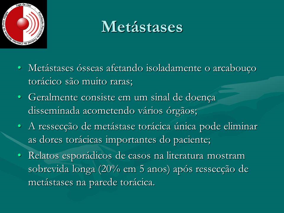 Metástases Metástases ósseas afetando isoladamente o arcabouço torácico são muito raras;