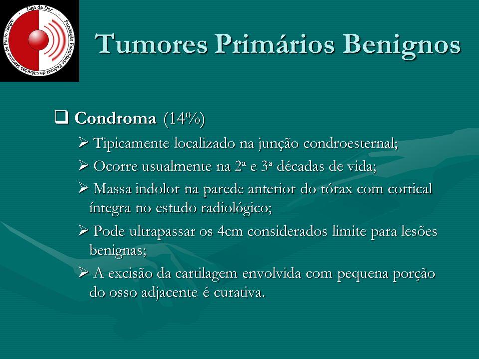 Tumores Primários Benignos