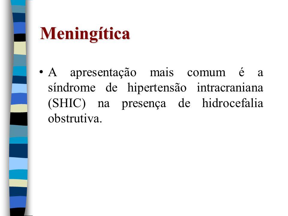 Meningítica A apresentação mais comum é a síndrome de hipertensão intracraniana (SHIC) na presença de hidrocefalia obstrutiva.
