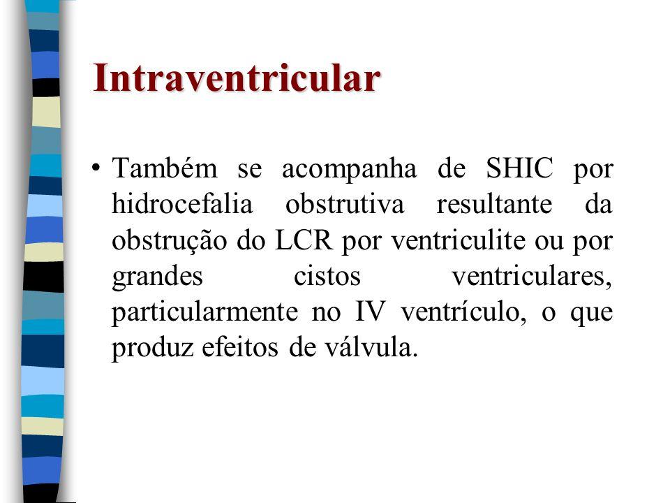 Intraventricular