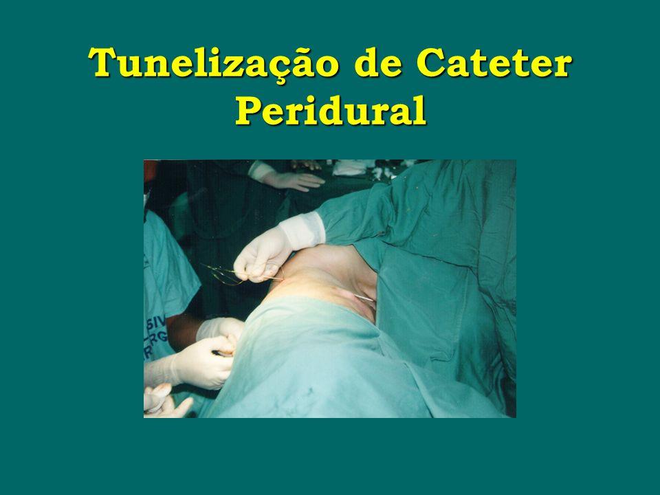 Tunelização de Cateter Peridural