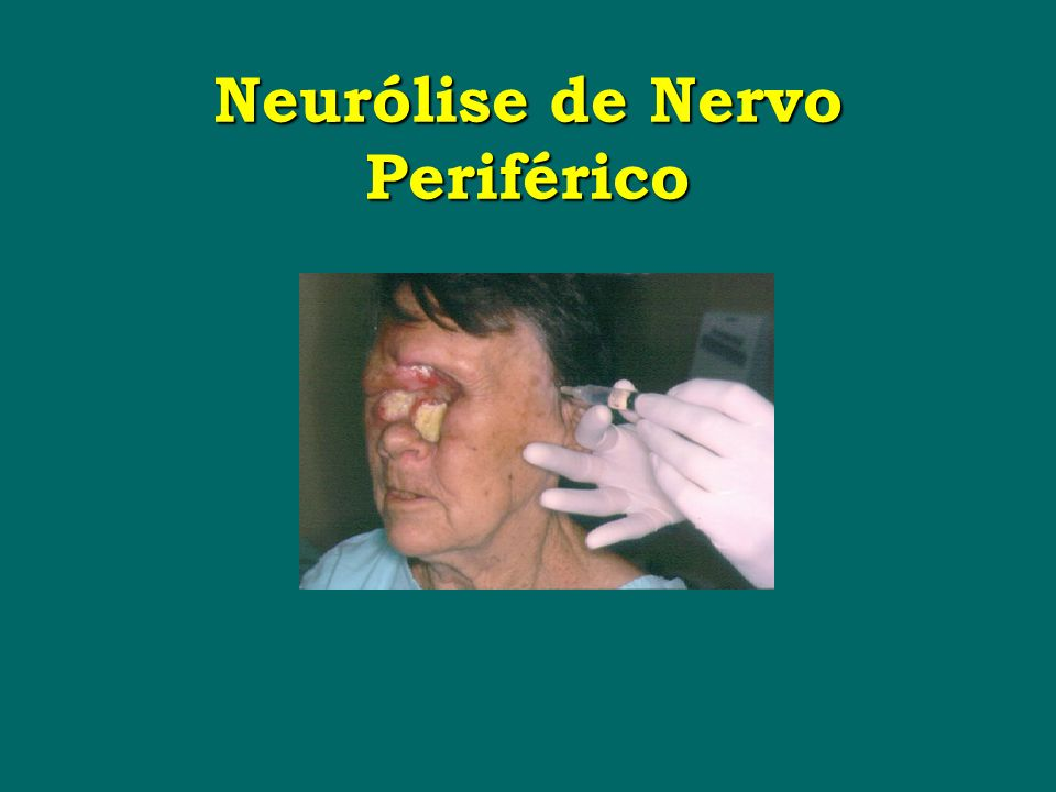 Neurólise de Nervo Periférico