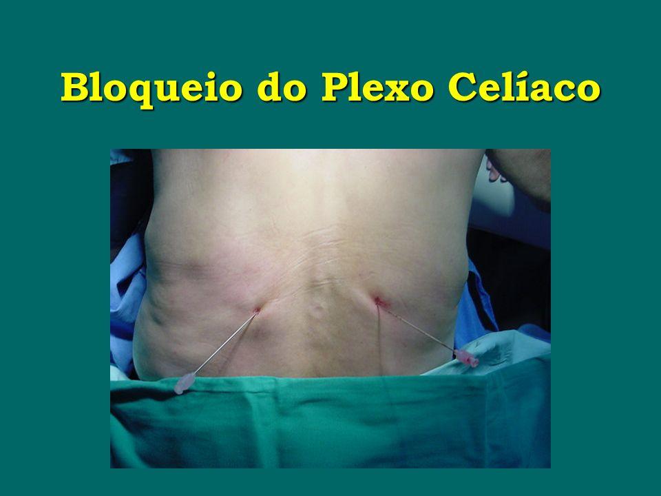 Bloqueio do Plexo Celíaco