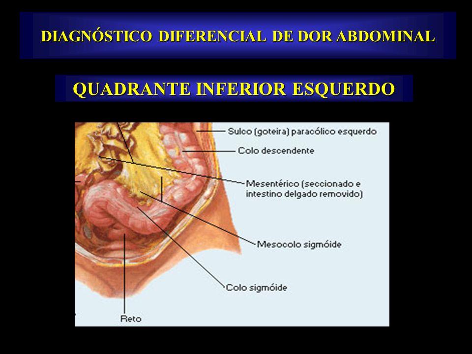 DIAGNÓSTICO DIFERENCIAL DE DOR ABDOMINAL QUADRANTE INFERIOR ESQUERDO