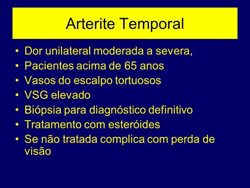 Arterite Temporal Dor unilateral moderada a severa,