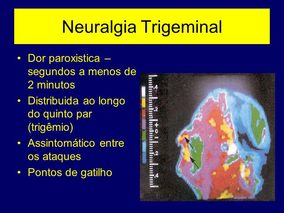 Neuralgia Trigeminal Dor paroxistica – segundos a menos de 2 minutos