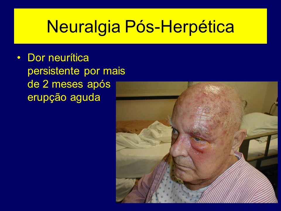 Neuralgia Pós-Herpética