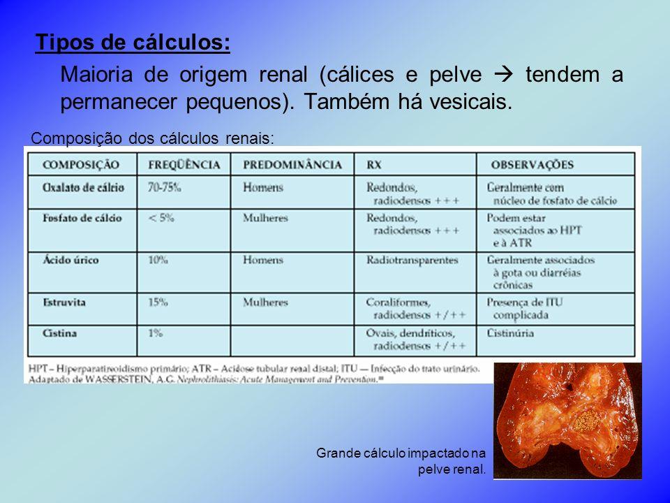 Tipos de cálculos: Maioria de origem renal (cálices e pelve  tendem a permanecer pequenos). Também há vesicais.