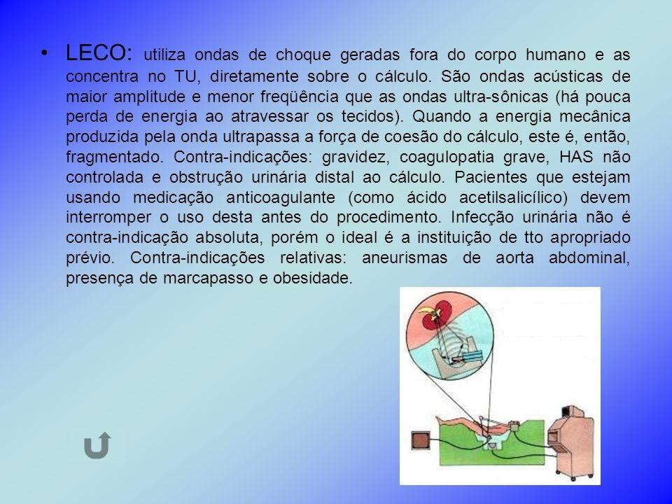 LECO: utiliza ondas de choque geradas fora do corpo humano e as concentra no TU, diretamente sobre o cálculo.