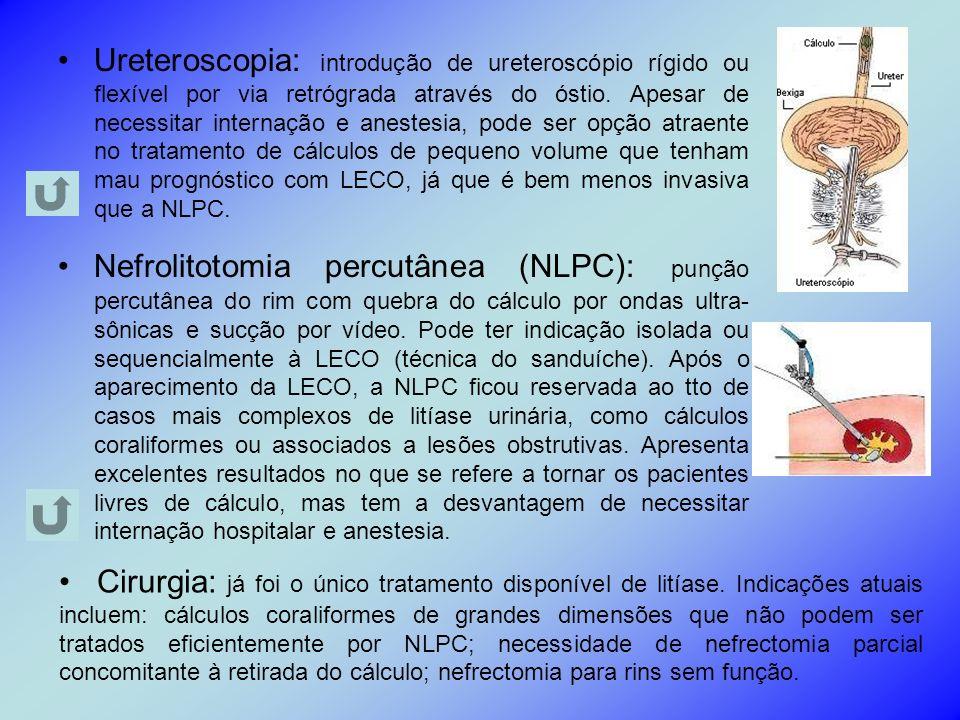 Ureteroscopia: introdução de ureteroscópio rígido ou flexível por via retrógrada através do óstio. Apesar de necessitar internação e anestesia, pode ser opção atraente no tratamento de cálculos de pequeno volume que tenham mau prognóstico com LECO, já que é bem menos invasiva que a NLPC.