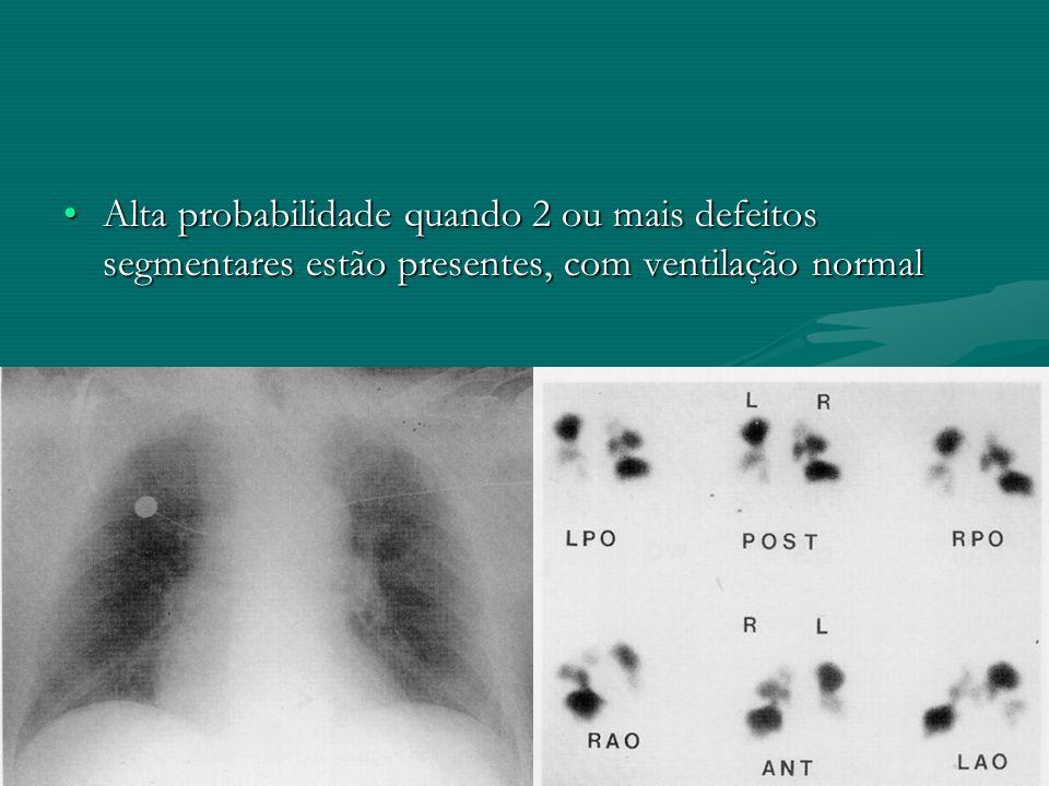 Alta probabilidade quando 2 ou mais defeitos segmentares estão presentes, com ventilação normal