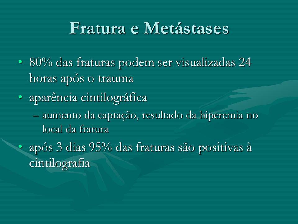 Fratura e Metástases 80% das fraturas podem ser visualizadas 24 horas após o trauma. aparência cintilográfica.