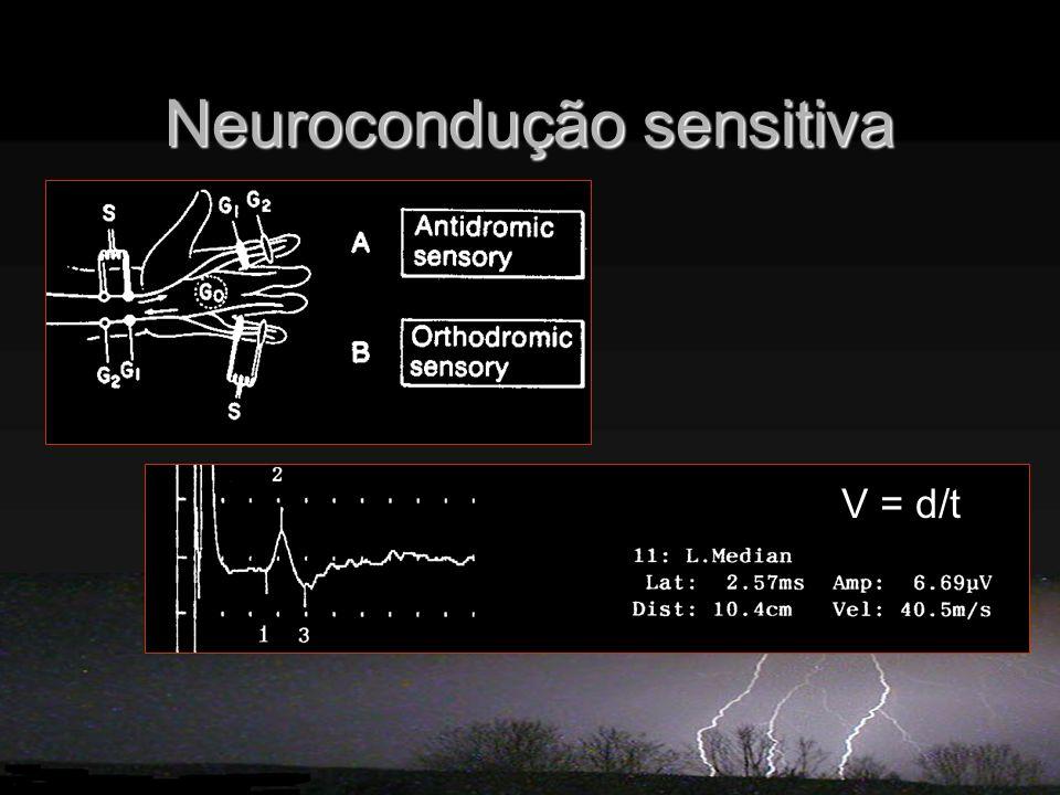 Neurocondução sensitiva