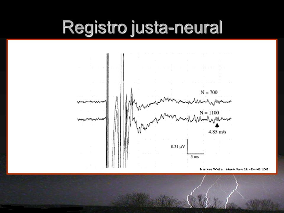 Registro justa-neural