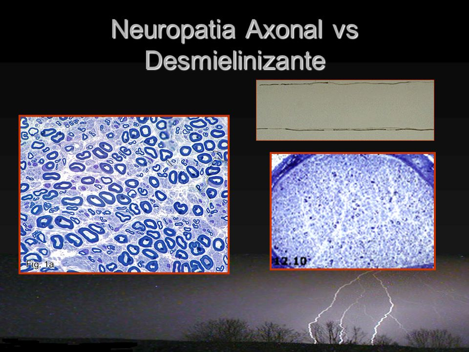 Neuropatia Axonal vs Desmielinizante