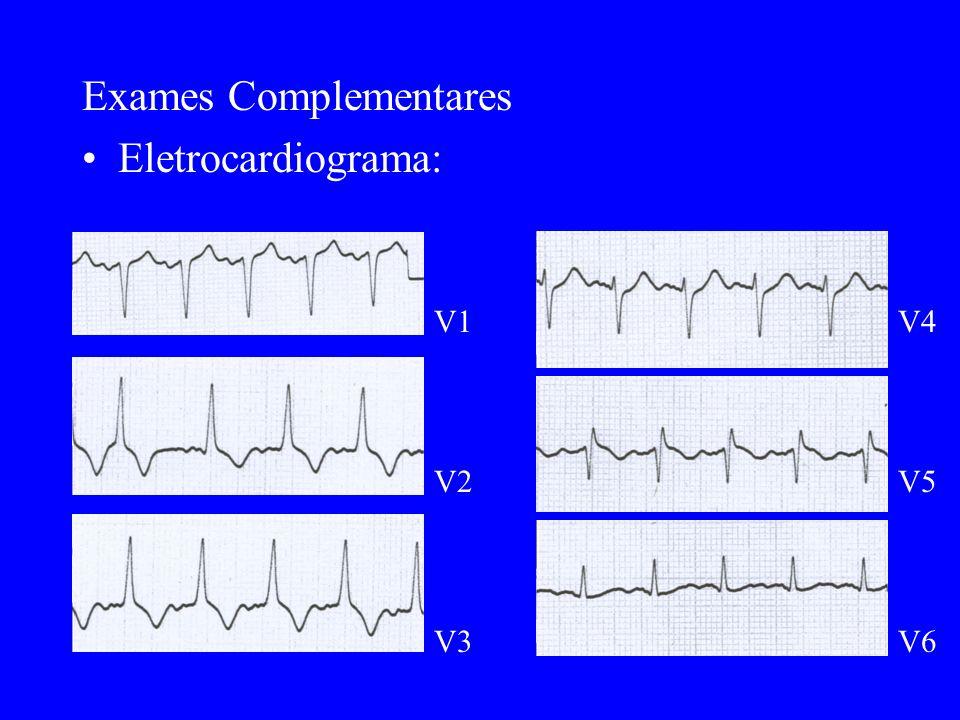 Exames Complementares Eletrocardiograma:
