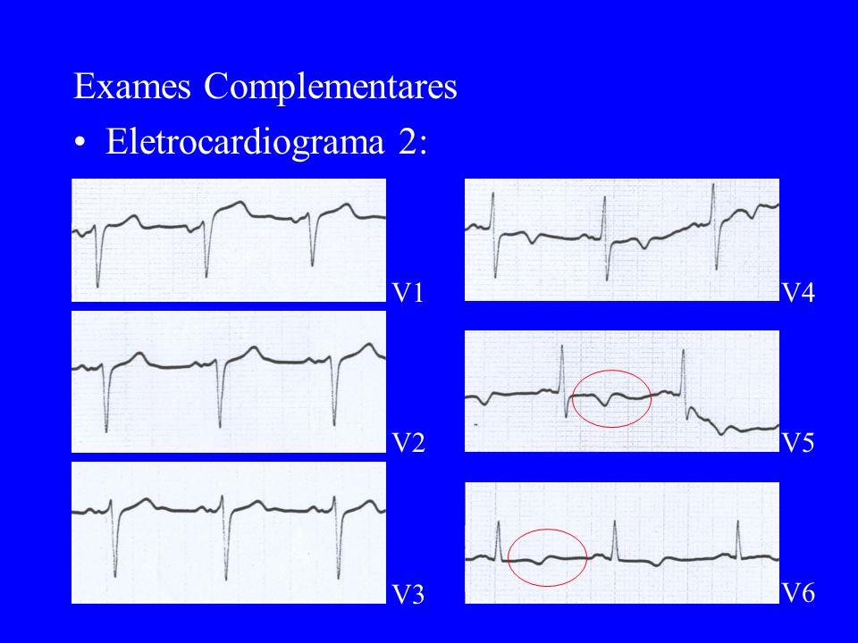 Exames Complementares Eletrocardiograma 2: