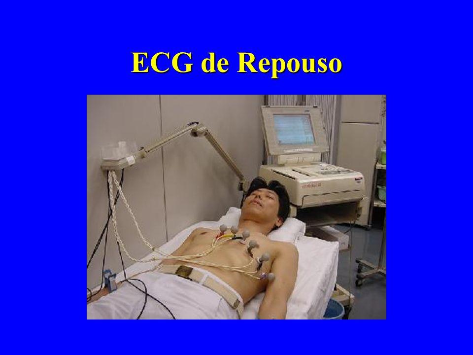ECG de Repouso