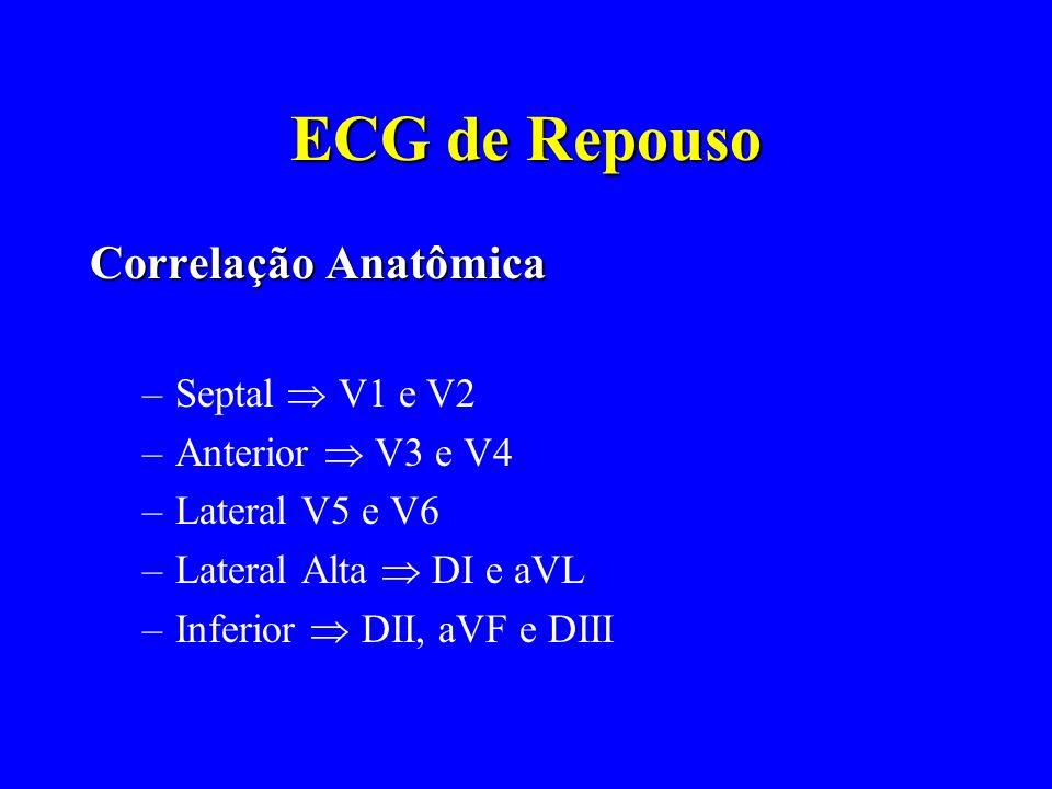 ECG de Repouso Correlação Anatômica Septal  V1 e V2