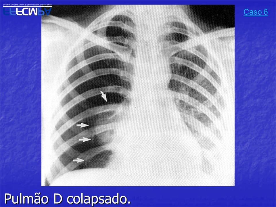 Caso 6 Pulmão D colapsado.