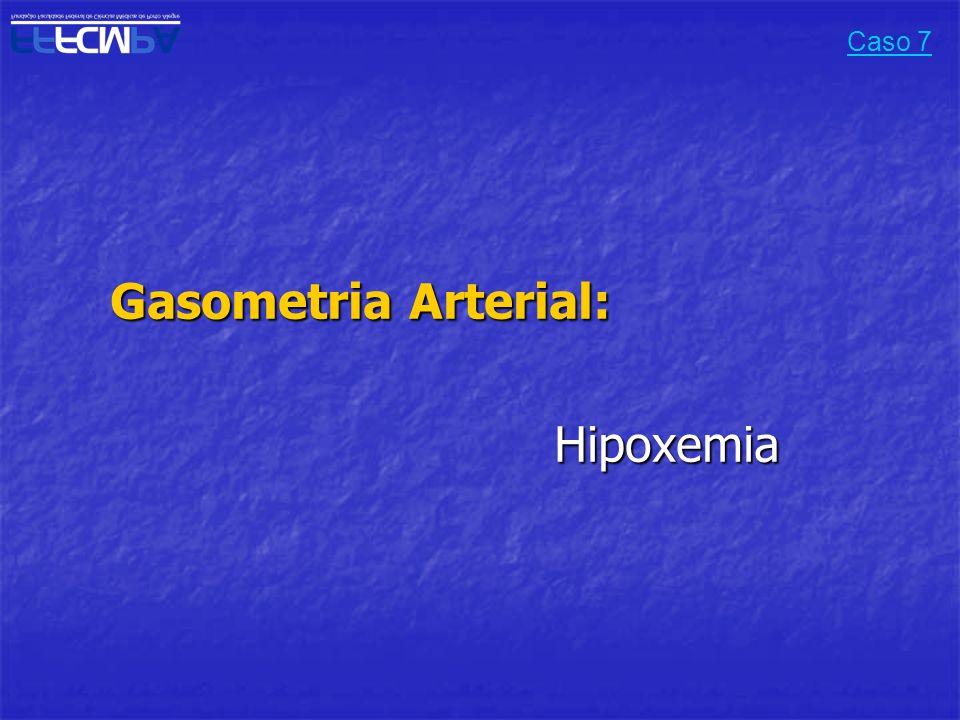 Caso 7 Gasometria Arterial: Hipoxemia