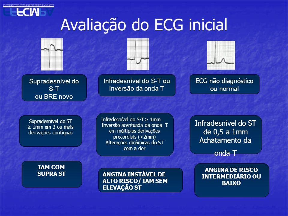 Avaliação do ECG inicial
