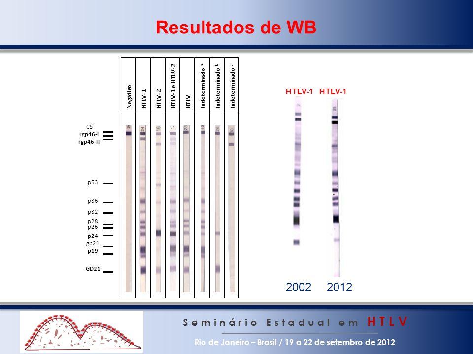 Resultados de WB p24. CS. rgp46-I. rgp46-II. p53. p36. p32. p28. p26. p19. GD21. gp21. Negativo.