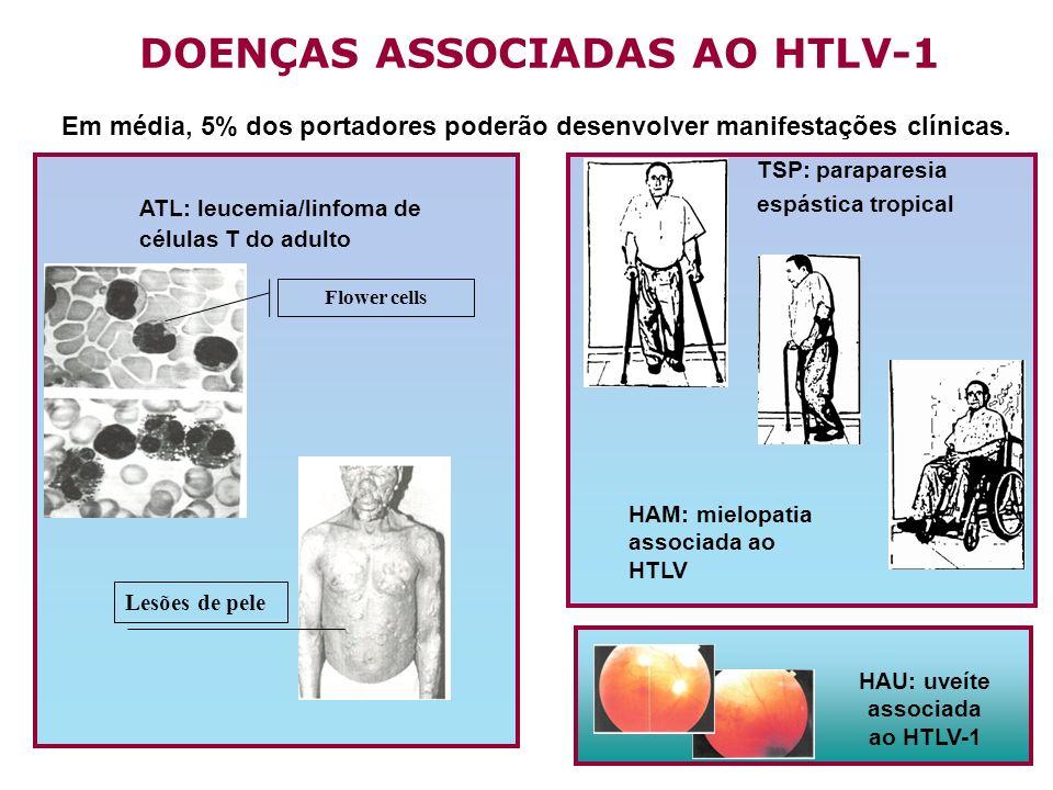 HAU: uveíte associada ao HTLV-1