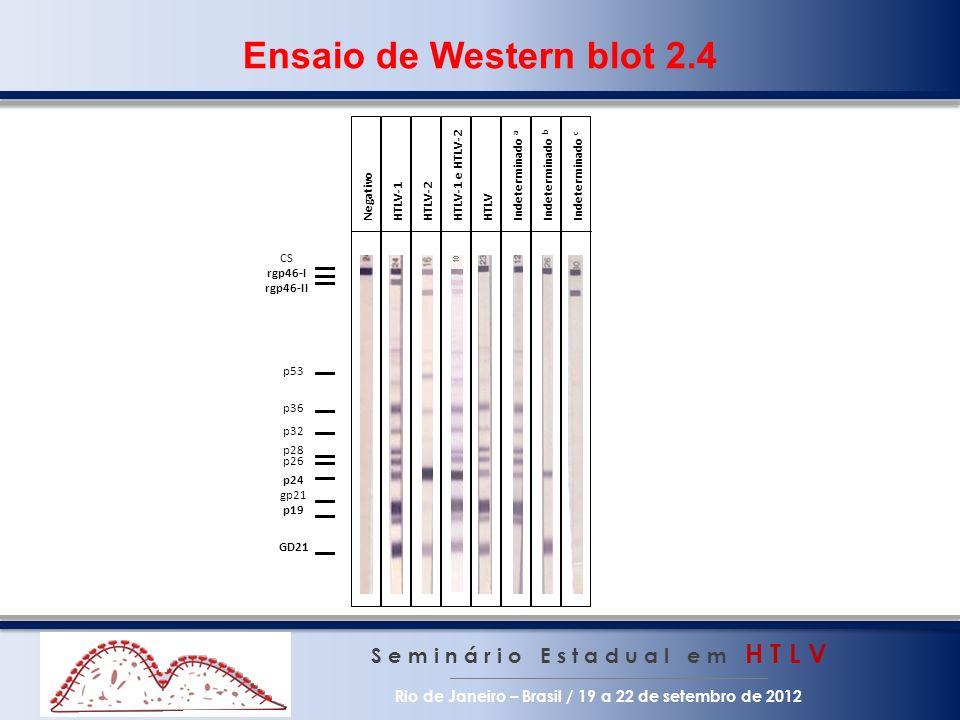 Ensaio de Western blot 2.4 p24. CS. rgp46-I. rgp46-II. p53. p36. p32. p28. p26. p19. GD21.