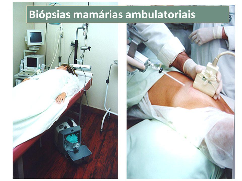 Biópsias mamárias ambulatoriais