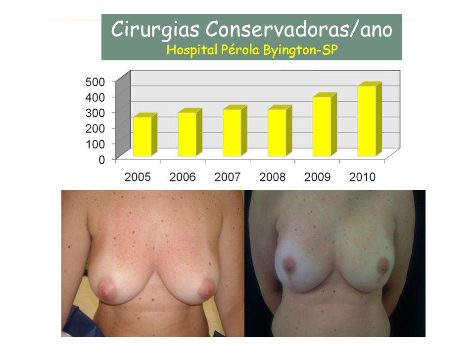 Cirurgias Conservadoras/ano