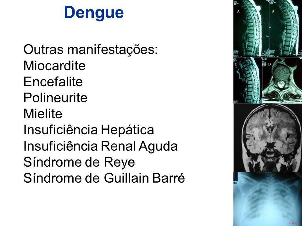 Dengue Outras manifestações: Miocardite Encefalite Polineurite Mielite