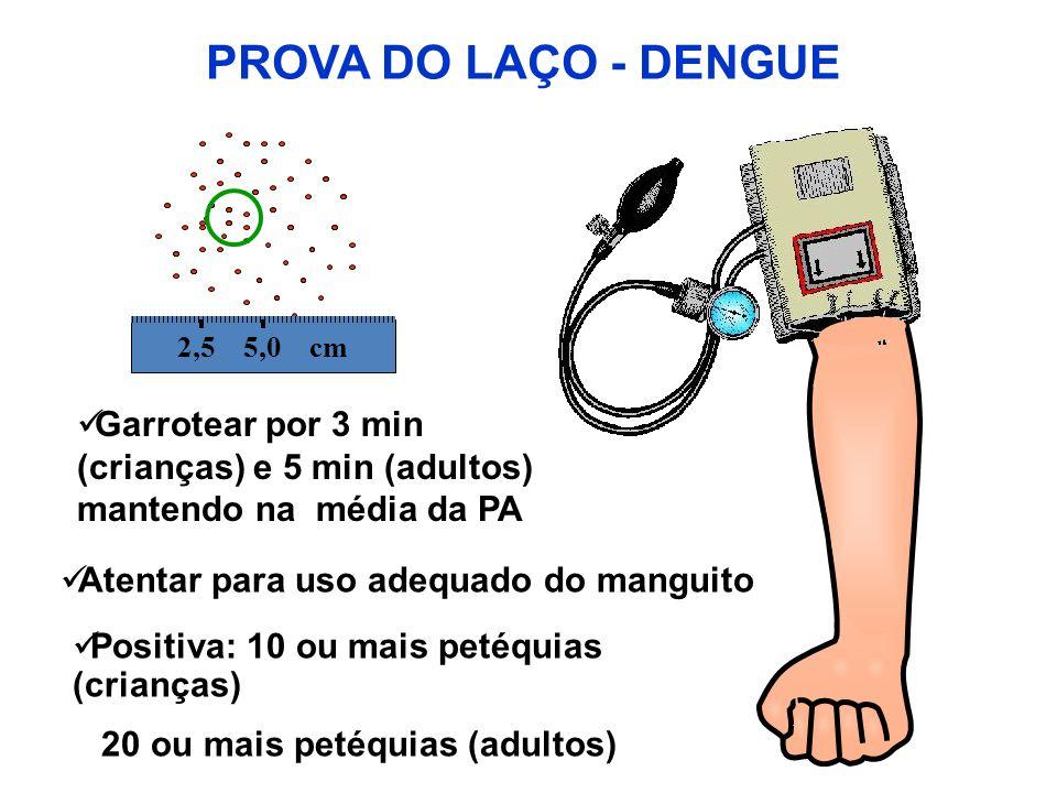 PROVA DO LAÇO - DENGUE 2,5 5,0 cm. Garrotear por 3 min (crianças) e 5 min (adultos) mantendo na média da PA.