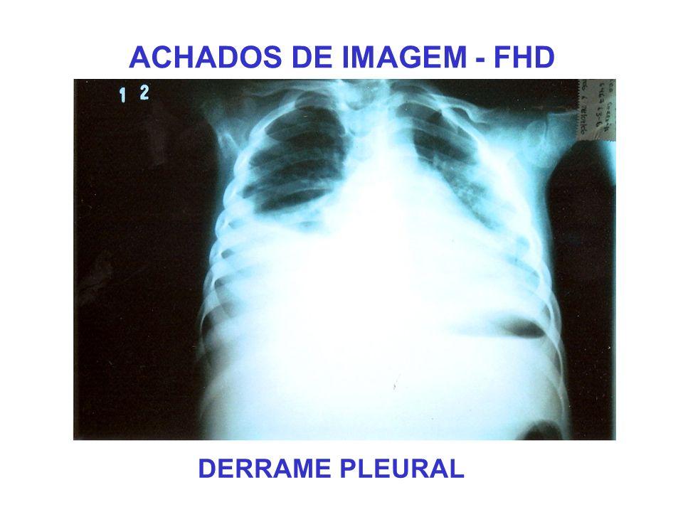 ACHADOS DE IMAGEM - FHD DERRAME PLEURAL