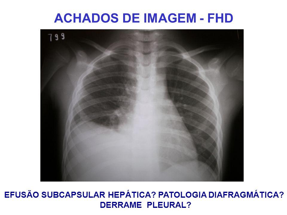 EFUSÃO SUBCAPSULAR HEPÁTICA PATOLOGIA DIAFRAGMÁTICA