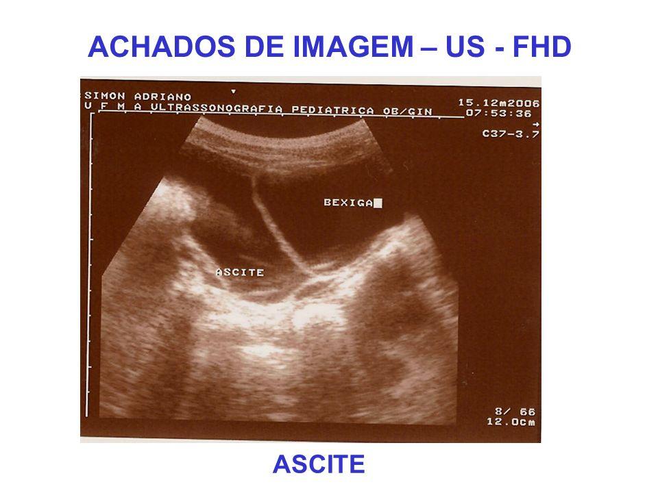 ACHADOS DE IMAGEM – US - FHD