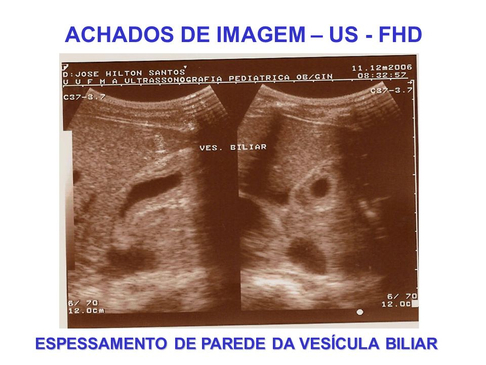 ACHADOS DE IMAGEM – US - FHD ESPESSAMENTO DE PAREDE DA VESÍCULA BILIAR