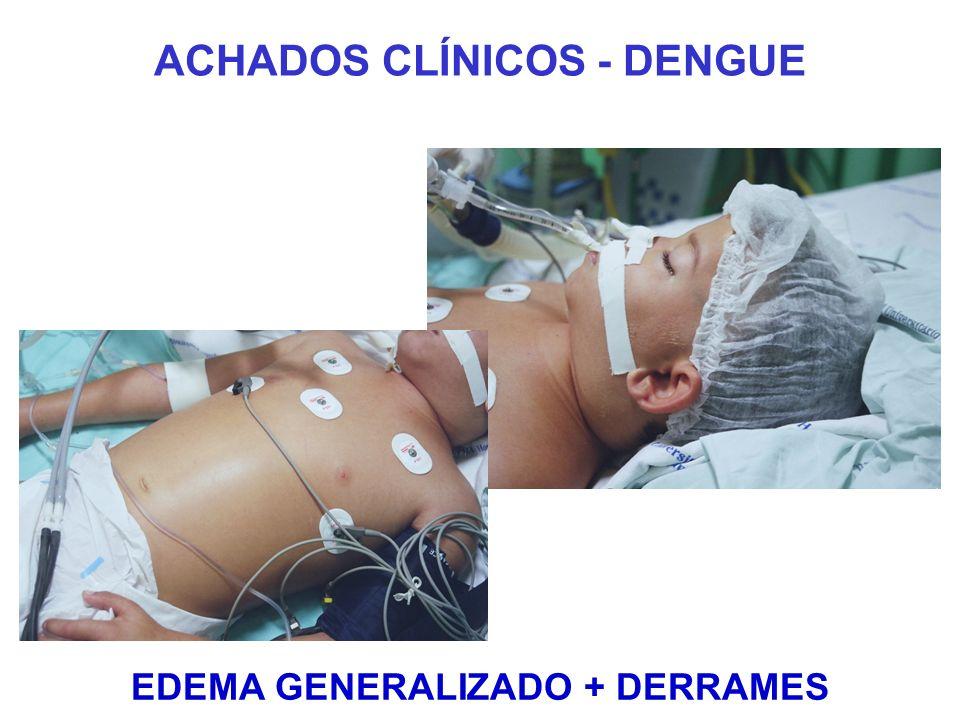 ACHADOS CLÍNICOS - DENGUE