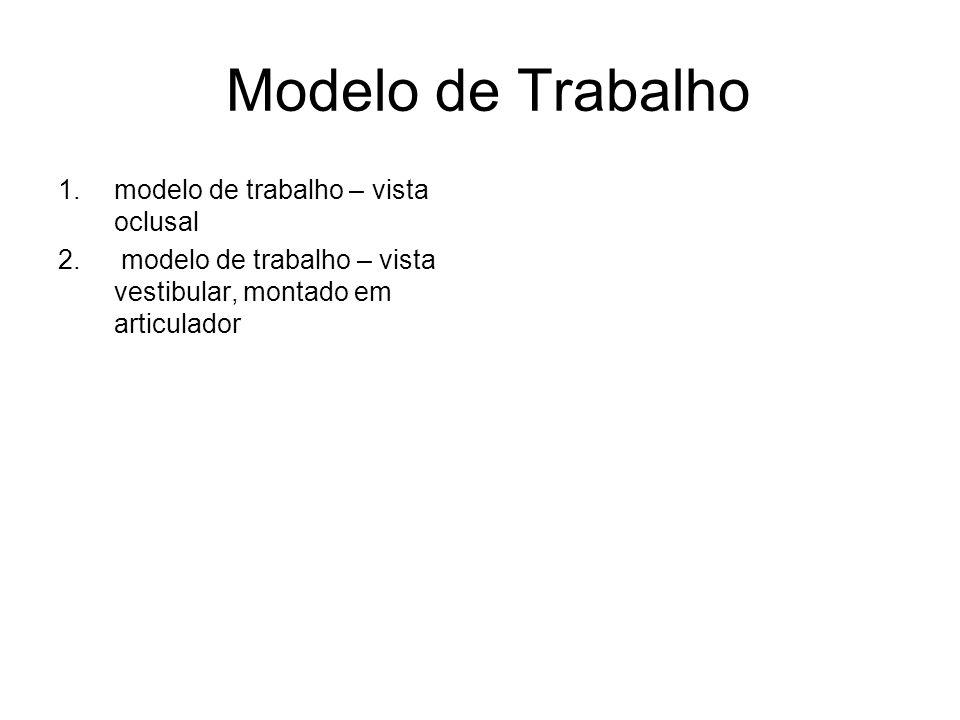 Modelo de Trabalho modelo de trabalho – vista oclusal