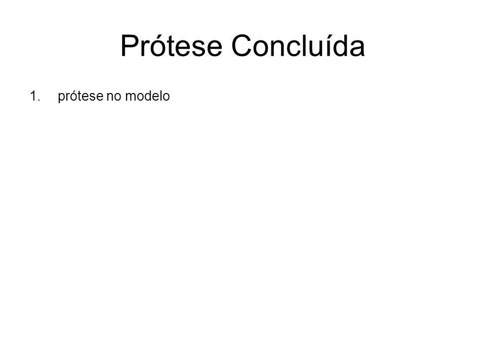 Prótese Concluída prótese no modelo