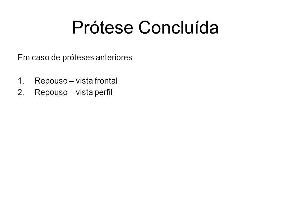 Prótese Concluída Em caso de próteses anteriores: