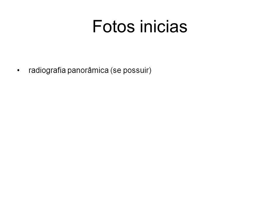 Fotos inicias radiografia panorâmica (se possuir)