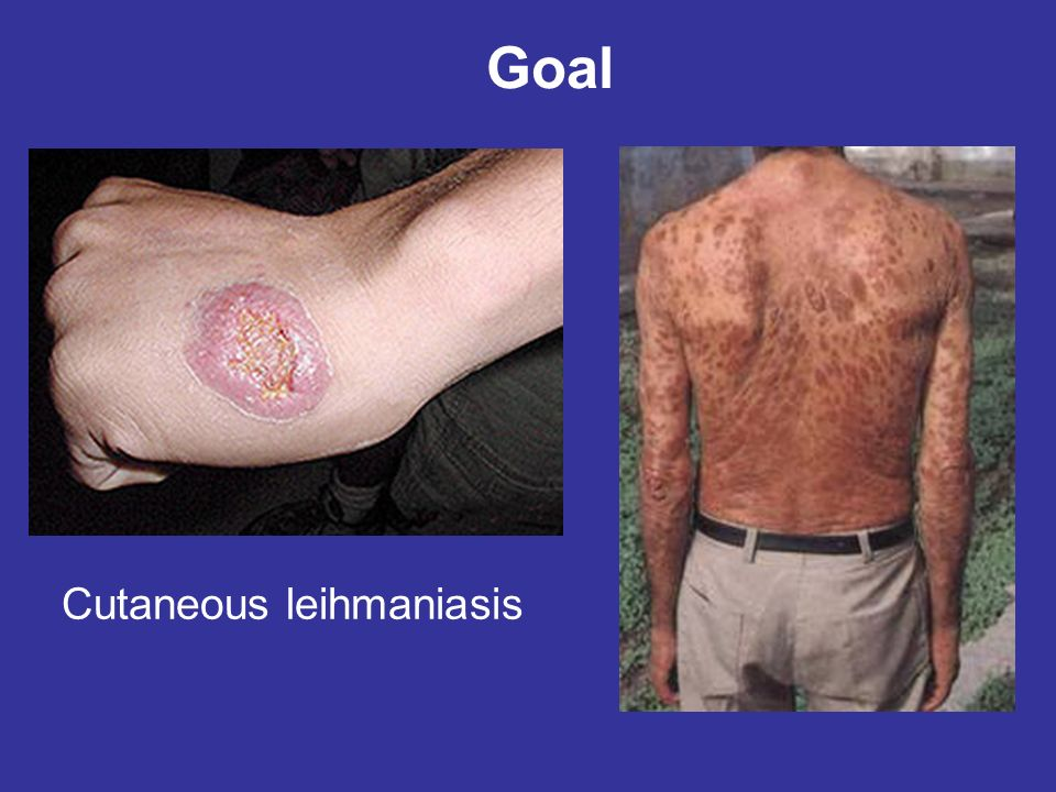 Cutaneous leihmaniasis