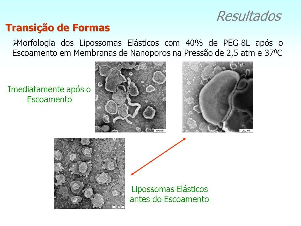 Resultados Lipossomas Convencionais Morfologia