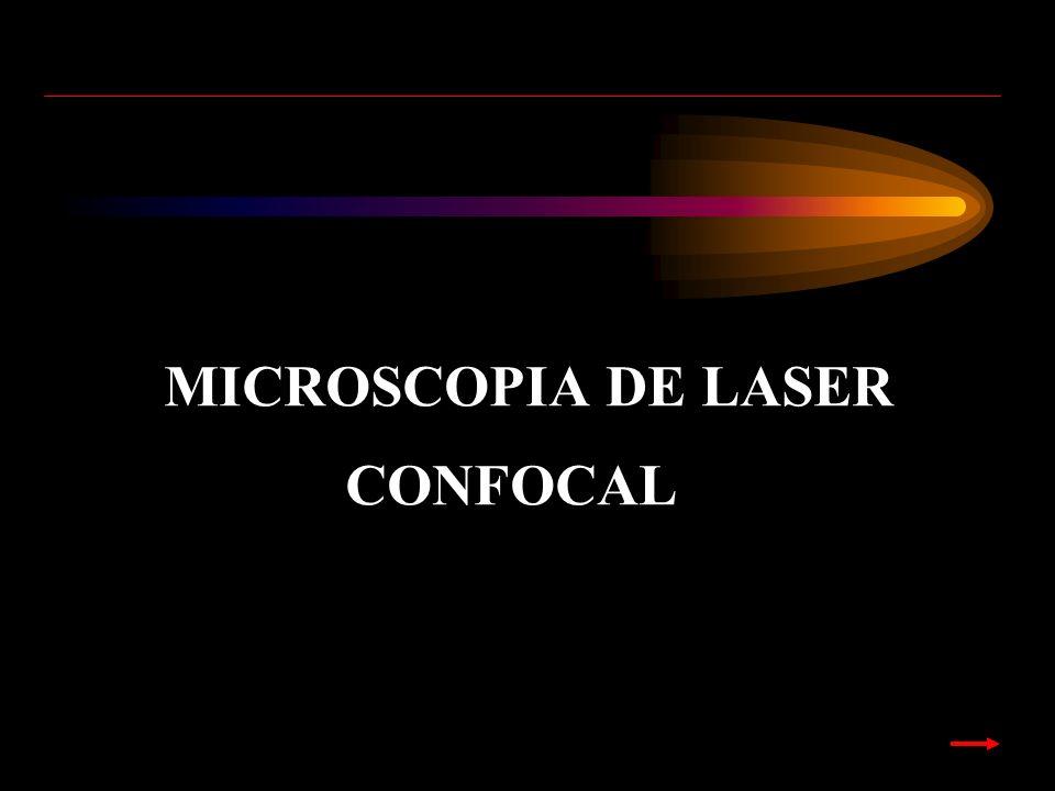 MICROSCOPIA DE LASER CONFOCAL