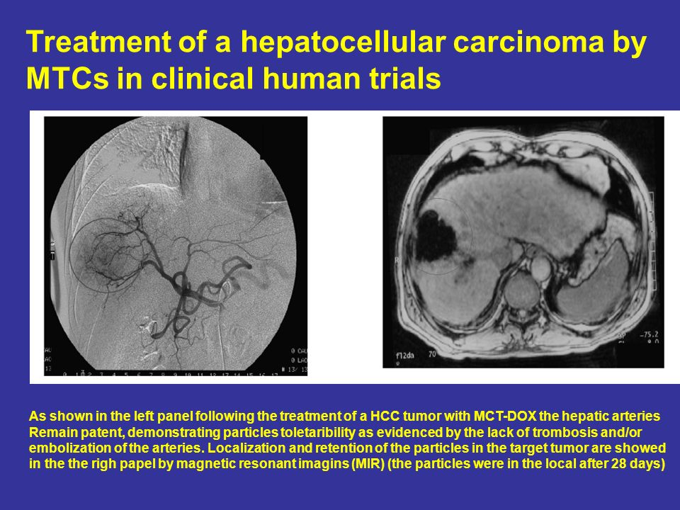 Treatment of a hepatocellular carcinoma by